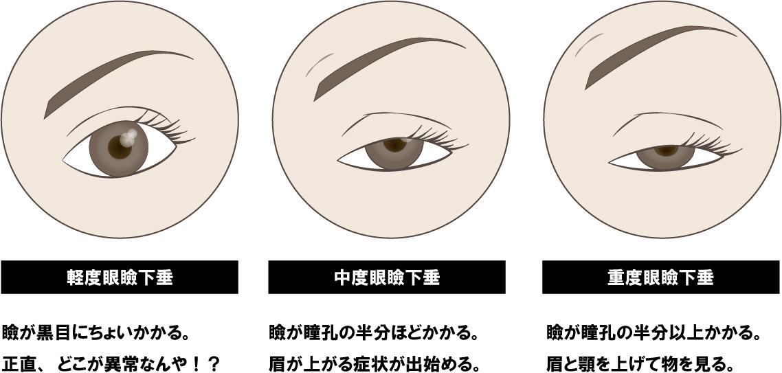 眼瞼下垂軽度中度重度
