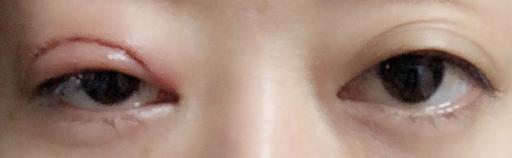 眼瞼下垂切開手術直後